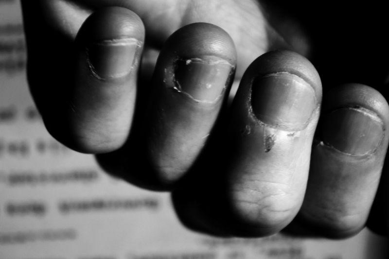Hands Nail Biting